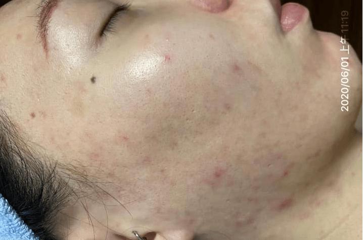 cách chăm sóc da bị viêm do mụn cũng quan trọng không kém