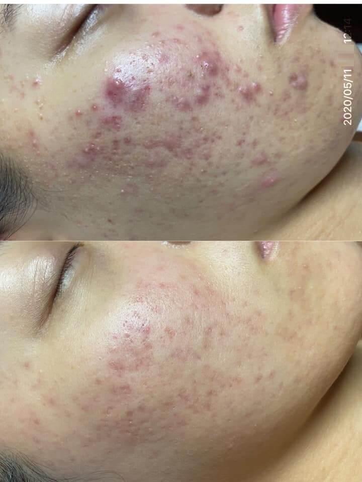 Làn da sạch mụn giúp tôi tự tin hơn rất nhiều