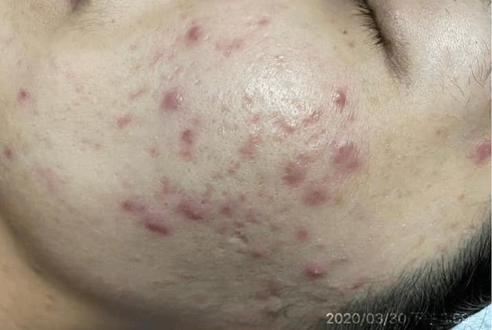 Môi trường làm việc không tốt để bảo vệ da nên da tôi bị dày đặc các loại mụn mủ, mụn viêm