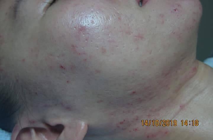 Một thời gian sau khi dùng các phương pháp tự nhiên thì cũng có kết quả tích cực trên da nhưng không rõ ràng cho lắm