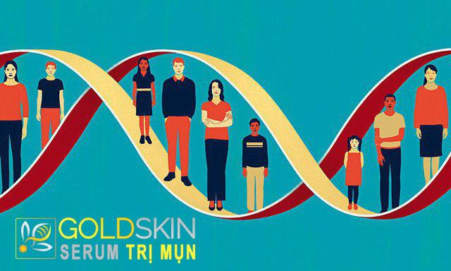 Di truyền có thể là nguyên nhân khiến da dầu