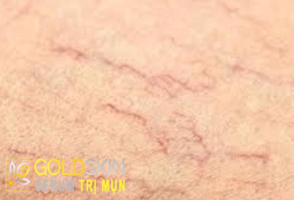 Dễ dàng nhìn thấy lớp mao mạch dưới da, đó là dấu hiệu của da nhạy cảm