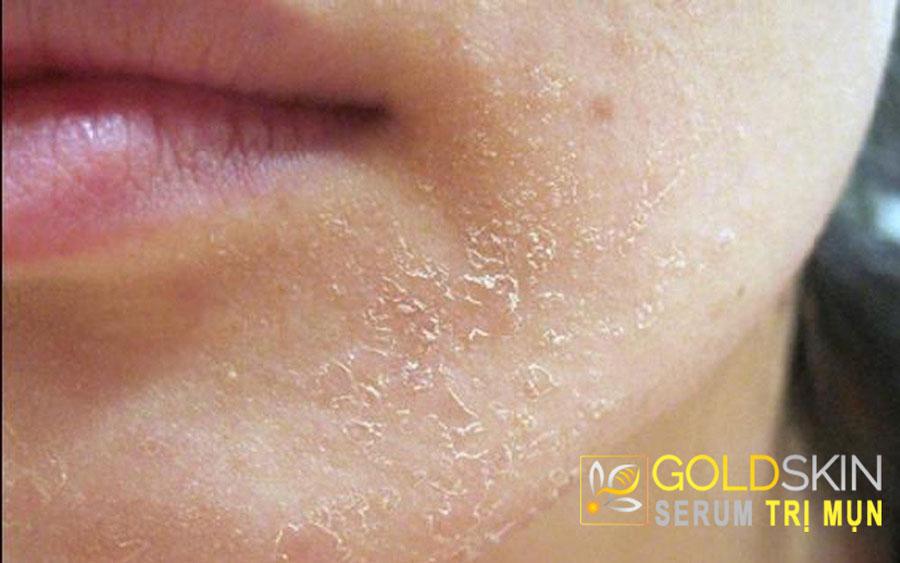 Da khô là một trong các dấu hiệu cảnh báo tình trạng da bắt đầu lão hóa.