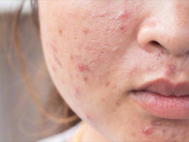 Mụn trứng cá gây tổn thương cho da khiến da bạn dễ để lại thâm và sẹo