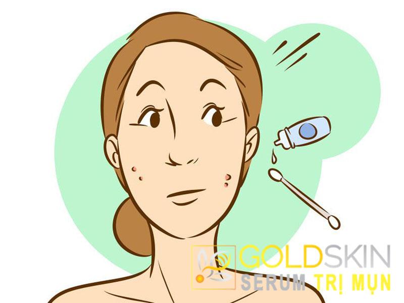 Sử dụng thuốc nhỏ mắt chứatetrahydrozoline hydrochloride
