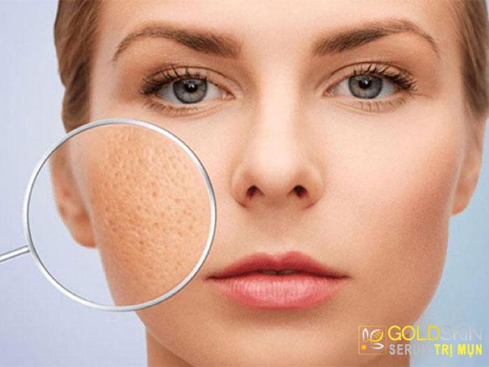 Những lưu ý khi chăm sóc da giúp se khít lỗ chân lông mặt
