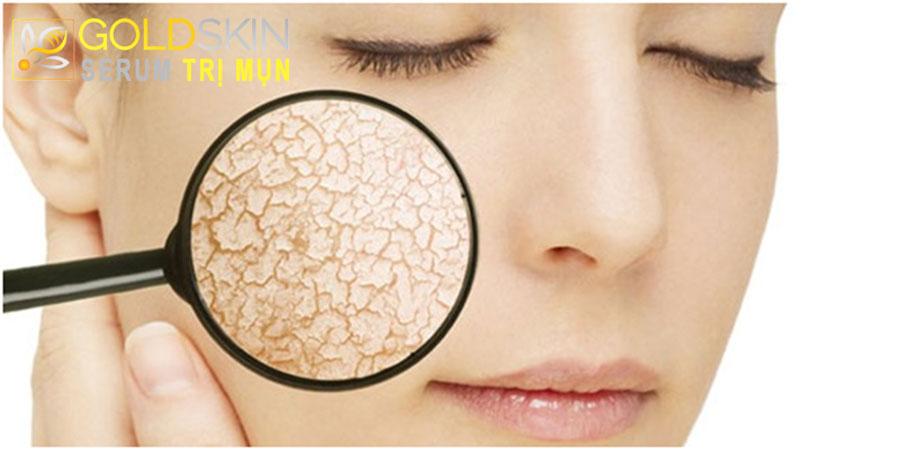 Biểu hiện ảnh hưởng của lão hóa da: Da khô, chảy xệ và còn hơn thế nữa