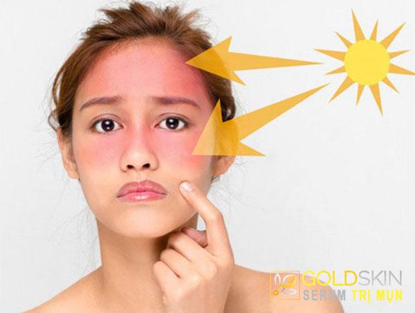 Ánh nắng mặt trời làm tăng mức độ lão hóa đối với làn da