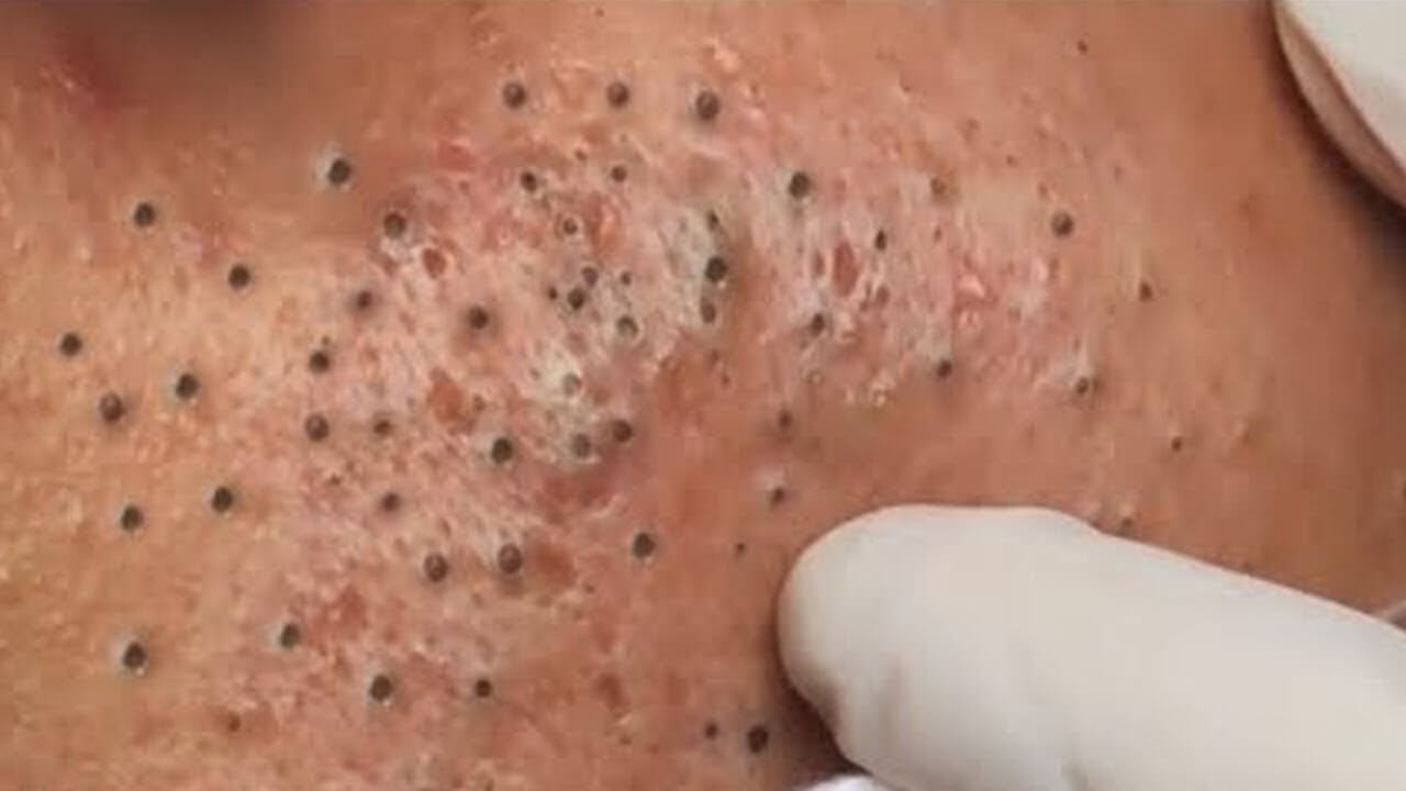 Mụn đầu đen sinh ra do các tuyến bã nhờn tiết ra quá nhiều dầu, kết hợp với bụi bẩn hay tế bào chết trên bề mặt da