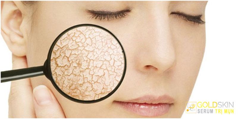 Da khô cần được cấp ẩm thường xuyên để da mềm mại