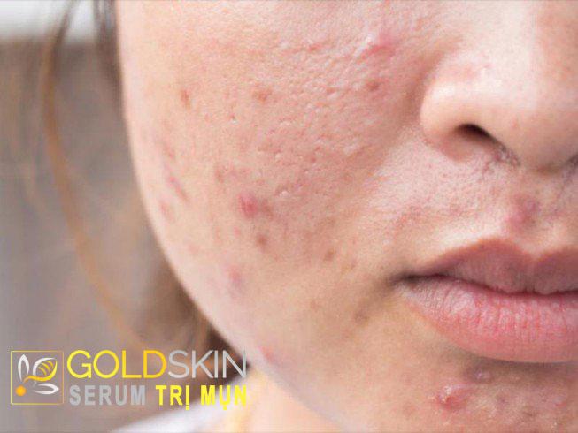 Cách trị mụn cho da dầu như thế nào?