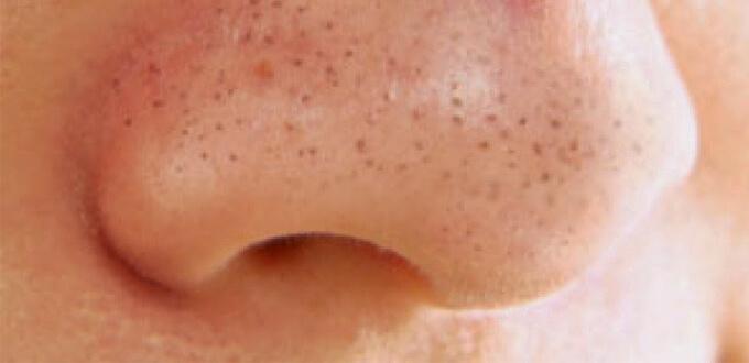Mụn đầu đen là mụn được tạo ra bởi lỗ chân lông bị bít tắc