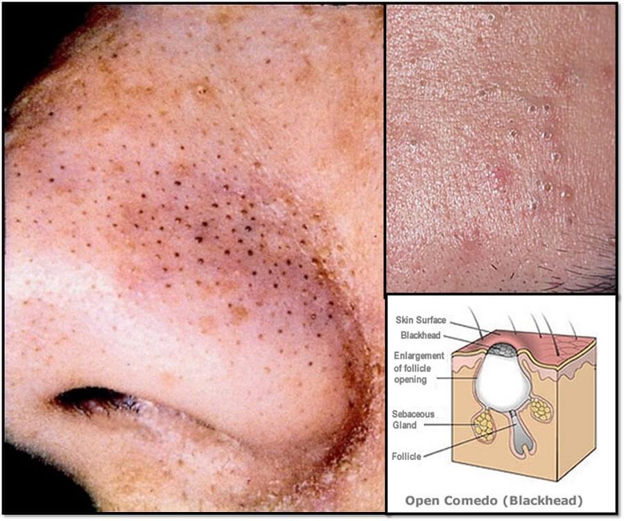 Mụn đầu đen là những nốt mụn sẽ nhô lên trên bề mặt da và thường có màu tối để dễ nhận thấy