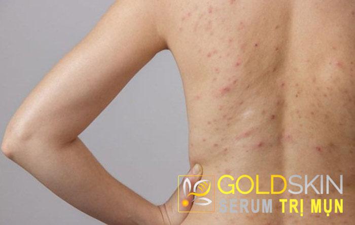 Cần làm gì để trị viêm nang lông ở lưng?