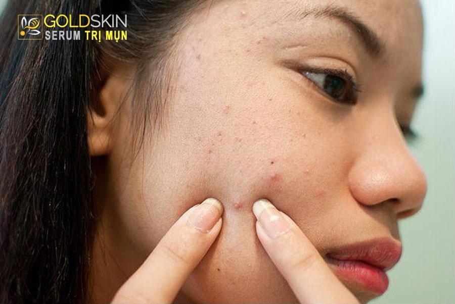 Nặn mụn có thể gây ra những nguy hiểm khó lường trên làn da của bạn