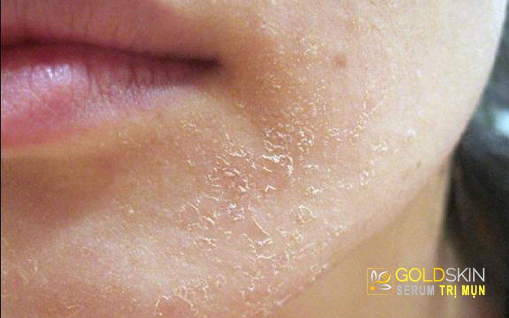 Người có da bị khô thường xuyên bị bong tróc ở vùng cằm vào mùa lạnh