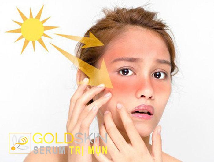 Hạn chế tiếp xúc với ánh nắng mặt trời trong quá trình điều trị sử dụng thuốc