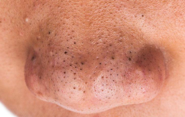 Tuyến bã nhờn hoạt động mạnh nhất ở vùng chữ T làm bít tắc lỗ chân lông gây mụn đầu đen