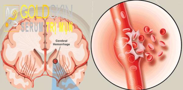 Người bệnh bị đột quỵ nên sử dụng spironolactone không đi kèm với thuốc tránh thai