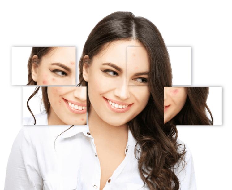 Hormone có phải nguyên nhân gây mụn ?