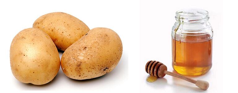 Trị mụn đầu đen bằng khoai tây cùng mật ong nguyên chất