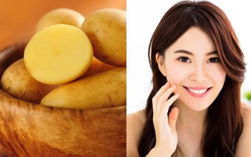 Hướng dẫn cách trị mụn đầu đen bằng khoai tây thật đơn giản, có thể áp dụng ngay tại nhà mà không cần lo lắng