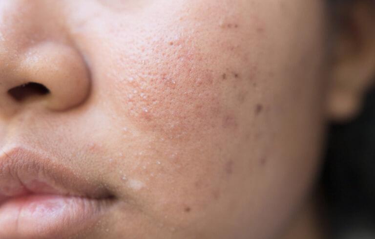 Mụn đầu đen thường là những nốt mụn nhỏ hơi nhô trên bề mặt da và có màu tối