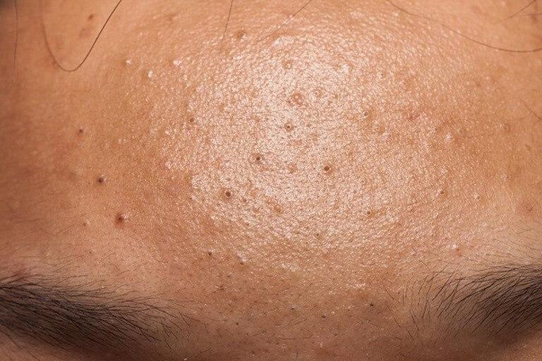 Mụn đầu đen hình thành từ các lỗ nang lông trên da bị tắc nghẽn