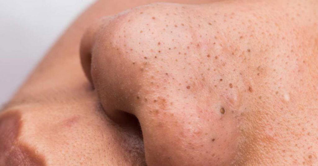 Mụn đầu đen có thể hình thành do yếu tố môi trường hoặc sự mất cân bằng hormone trong cơ thể