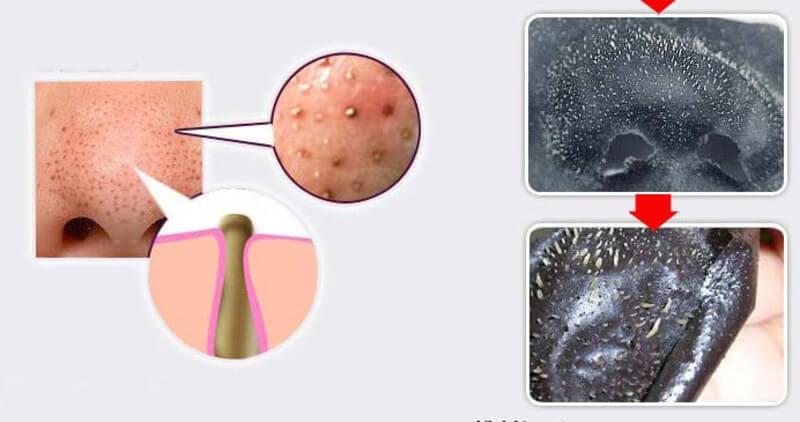Miếng dán lột mụn là sản phẩm làm sạch mụn đầu đen mà nhiều người cũng khá ưa thích sử dụng