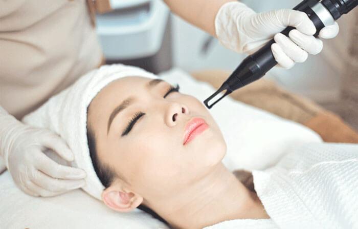 Áp dụng laser peel để trị thâm mụn là phương pháp điều trị để tái tạo bề mặt da