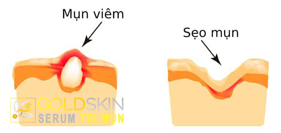 Sẹo mụn là kết quả của sự tổn thương bởi các loại mụn viêm gây ra