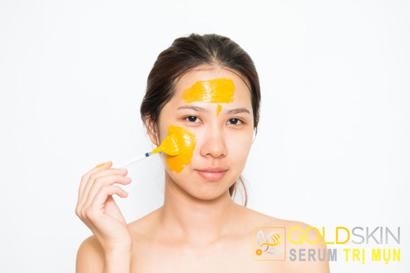 Mách bạn 5+ cách làm mặt nạ tinh bột nghệ trị mụn tại nhà đơn giản hiệu quả