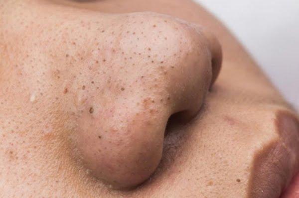 Mụn đầu đen là mụn có nhân nằm sâu trong lỗ chân lông