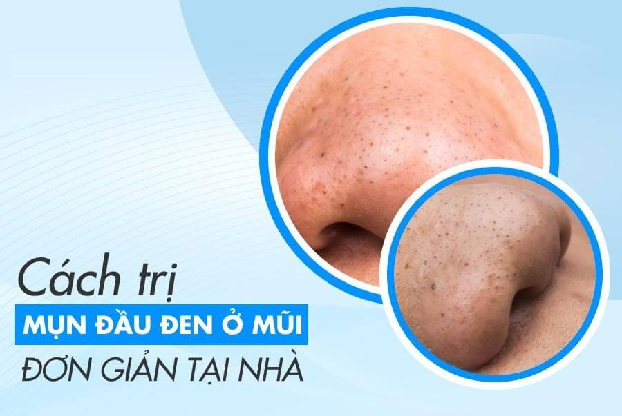 Mụn đầu đen thường xuất hiện ở trên mũi, gây ảnh hưởng không nhỏ tới thẩm mỹ khuôn mặt