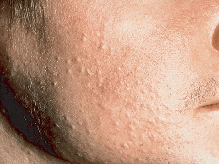 Mụn ẩn khác mụn đầu đen ở chỗ lỗ nang lông không thể mở để đầu mụn tiếp xúc với bên ngoài