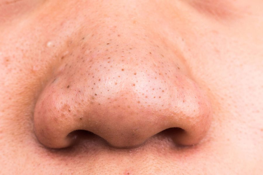 Mụn đầu đen là những lỗ nang lông bị bít tắc nằm ở các vùng da