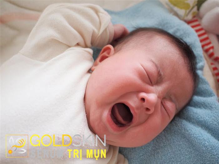 Mụn nước li ti ở trẻ sơ sinh có nguy hiểm không?