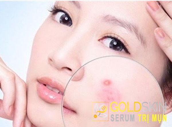 Da khô làm da tiết ra nhiều dầu hơn gây nên tình trạng mụn