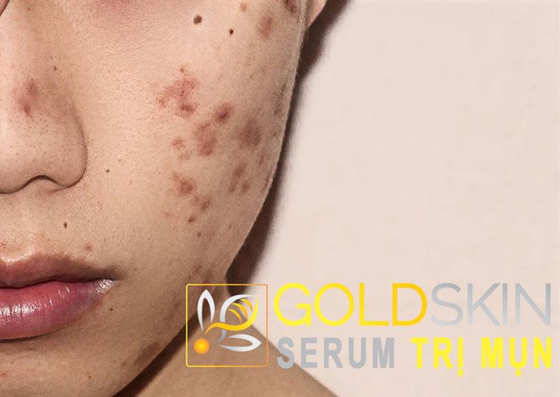 Có rất nhiều nguyên nhân dẫn đến vấn đề mụn thâm đỏ trên da mặt
