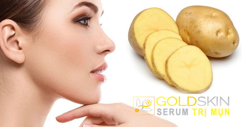 Khoai tây có chứa hàm lượng lớn vitamin C giúp làm mờ đi vết thâm