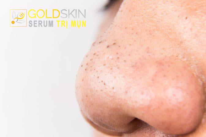 Mụn đầu đen thường xuất hiện ở hai bên cánh mũi