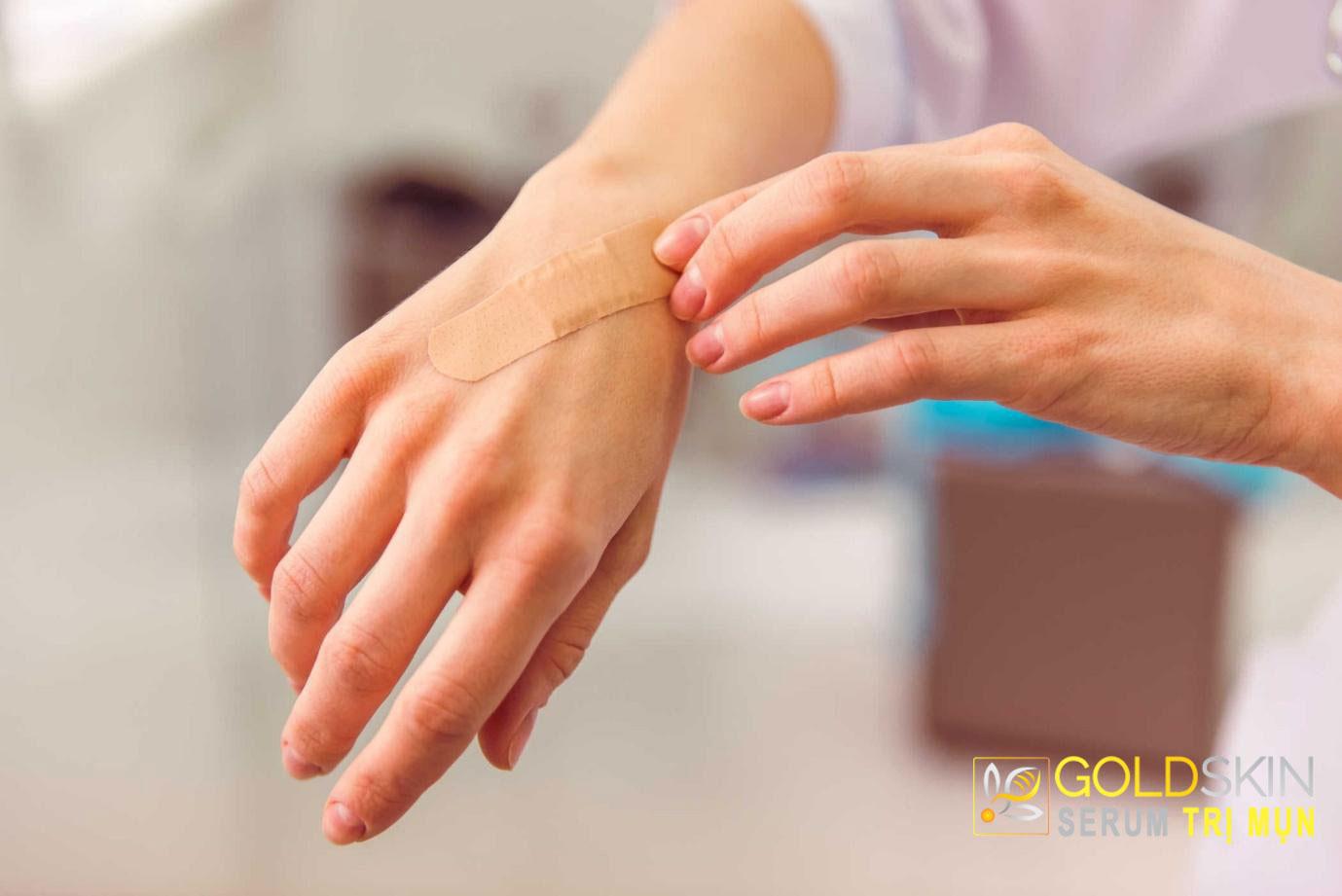 Người trong độ tuổi 10-30 tuổi có nguy cơ bị sẹo lồi cao nhất