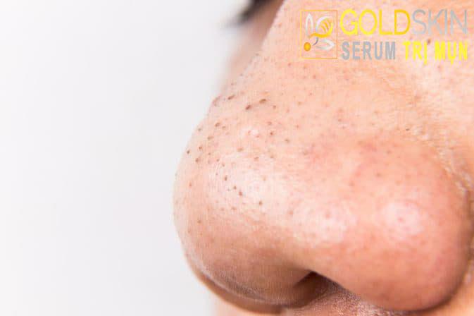 Sự hình thành và cách chăm sóc da mụn đầu đen