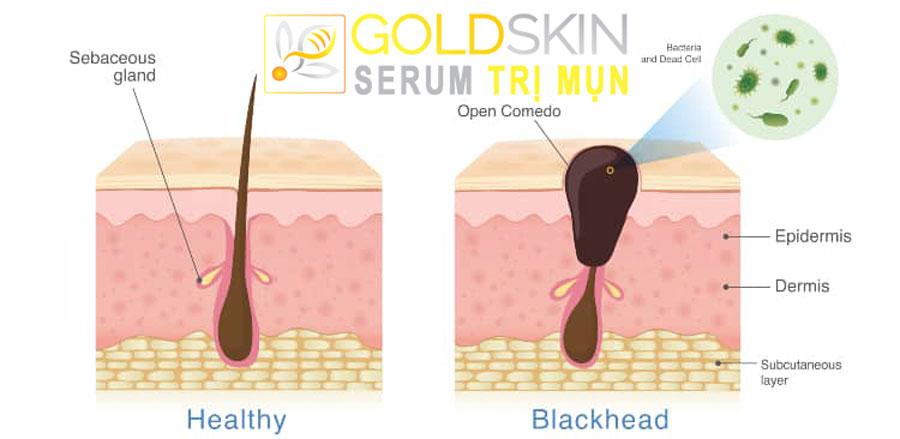 Mụn đầu đen được hình thành do phần đầu lỗ chân lông bị bít tắc bởi các bụi bẩn, tế bào da chết hay do các sản phẩm trang điểm còn sót lại