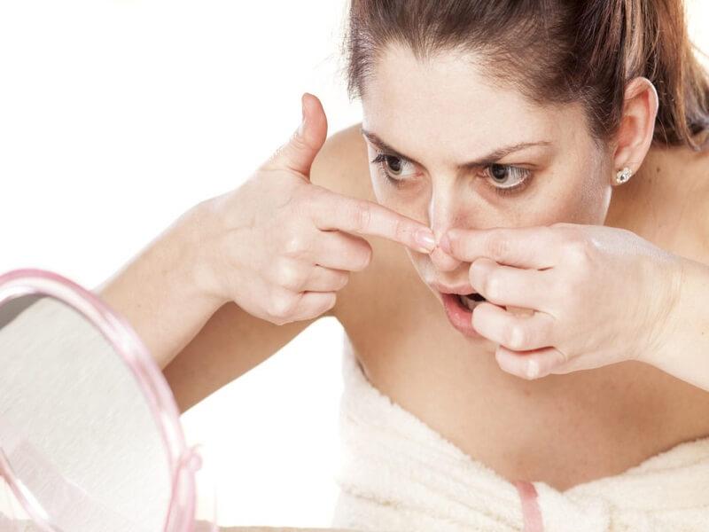"""Mụn đầu đen là một loại mụn không viêm, có bề mặt da hở gọi là """"nhân hở"""""""