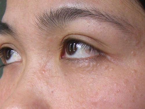 Mụn ẩn khiến da bạn sần sùi