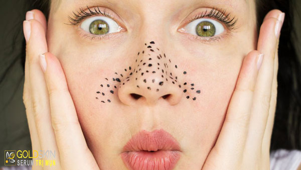 Mụn đầu đen nếu không được loại bỏ đúng cách và triệt để có thể ẩn sâu dưới da và trở thành nám.