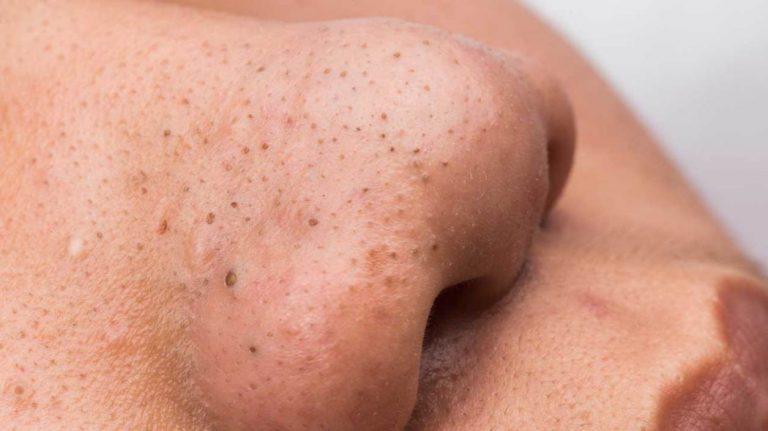 Những nguyên nhân hình thành mụn đầu đen ở mũi và cách trị mụn đầu đen