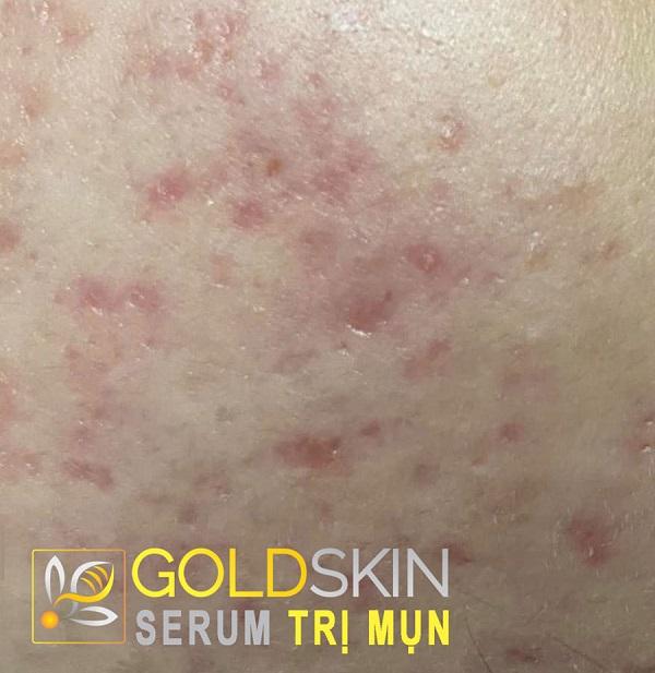 Goldskin sẽ là một bí quyết giúp làn da của bạn thêm đẹp và đầy sức sống